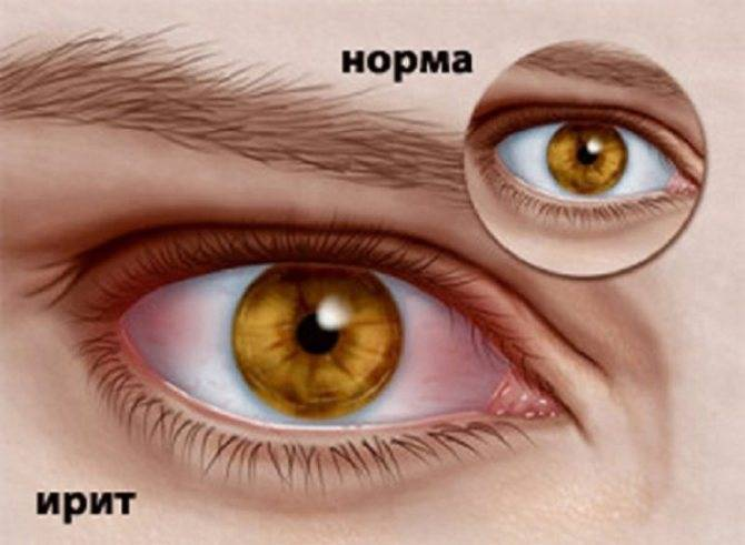 При моргании болит глаз