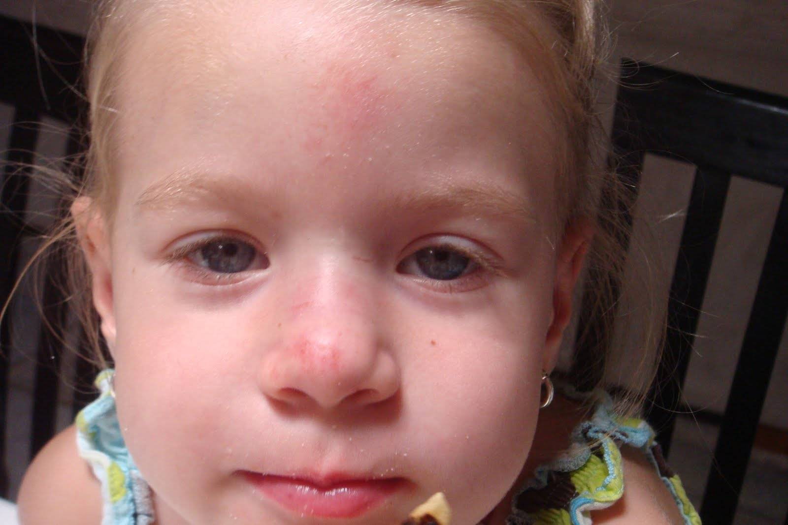 Перелом носа у ребенка: симптомы и лечение, как отличить от ушиба