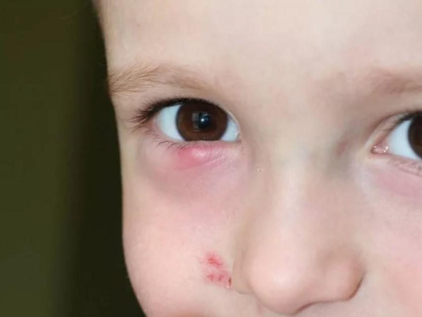 детские капли для глаз от воспаления