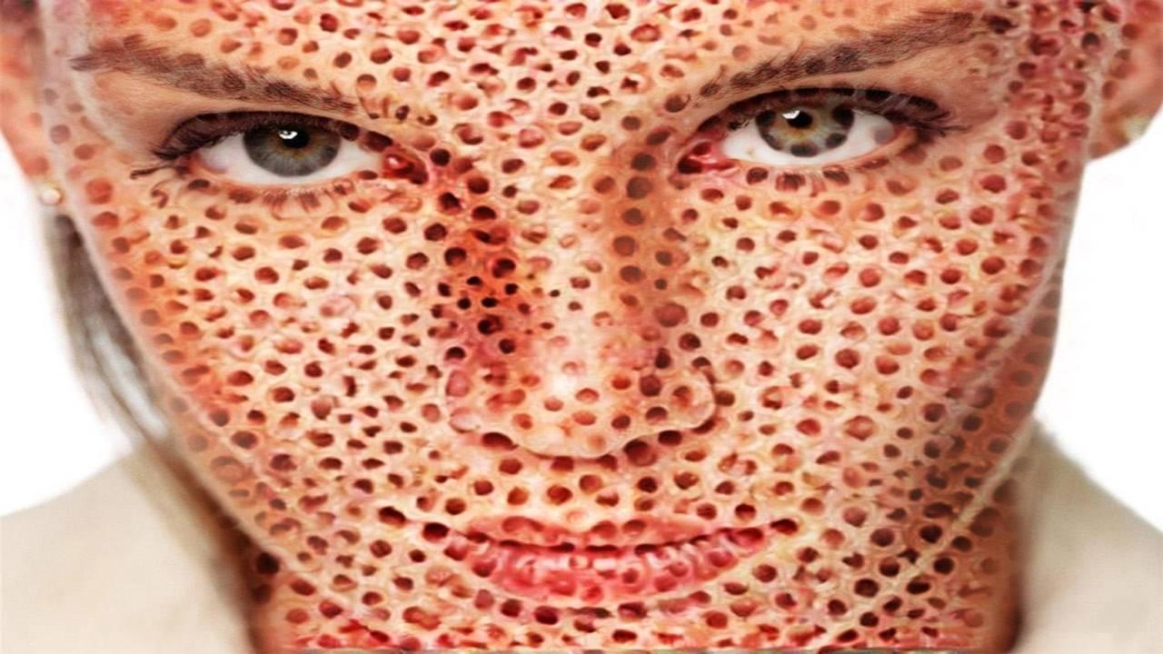 Причины трипофобии у человека: боязнь кластерных отверстий или когда много дырок