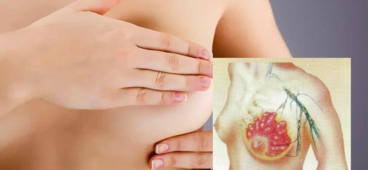 что будет если не лечить мастопатию