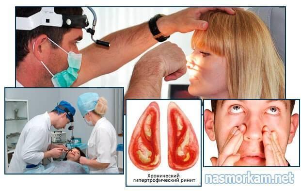 Гипертрофический и гиперпластический ринит: отличия от обычного насморка, способы лечения