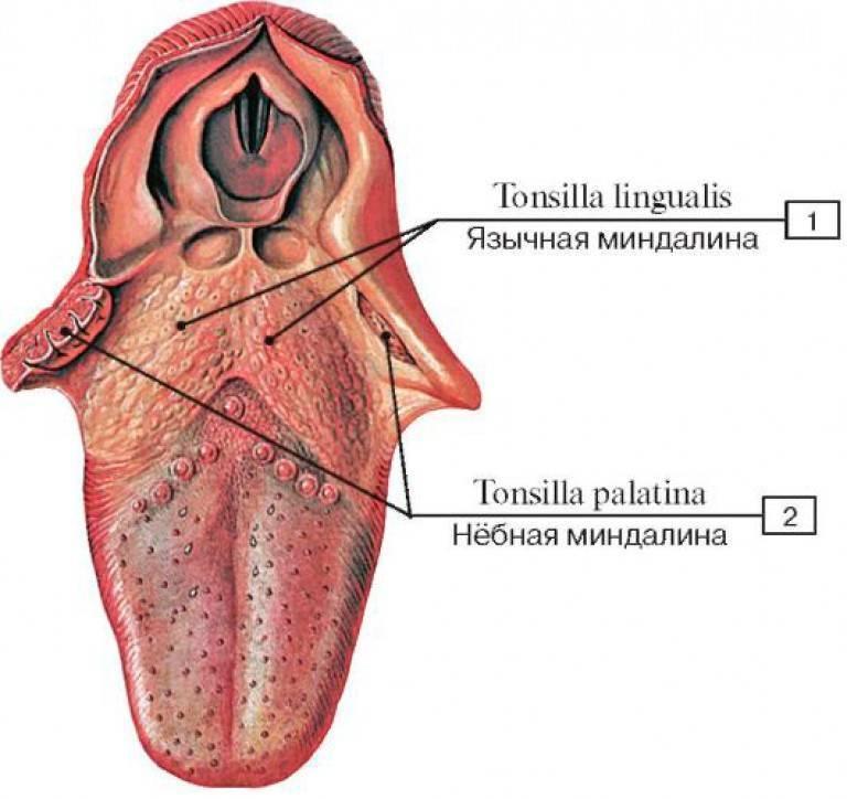 Воспаление миндалин симптомы у взрослых