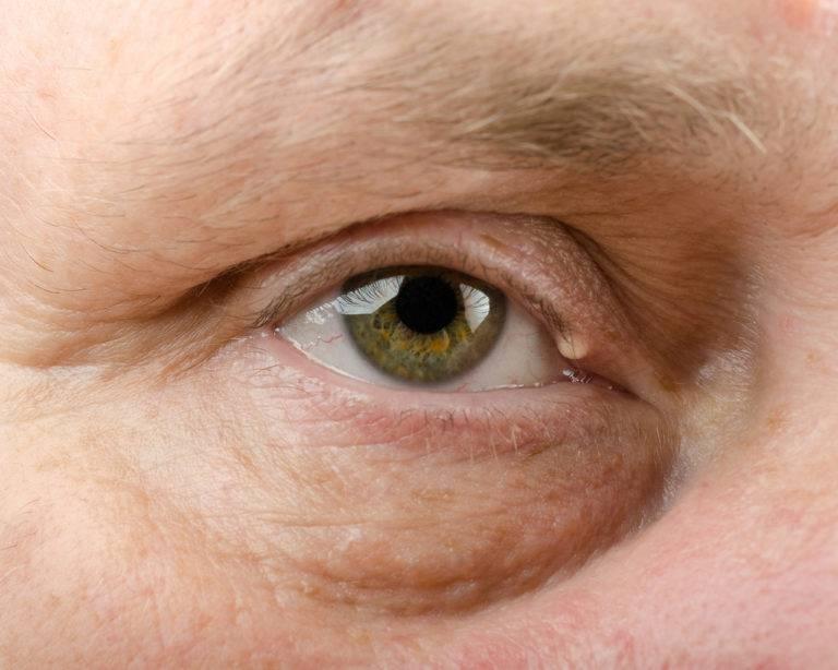 белые пятна вокруг глаз