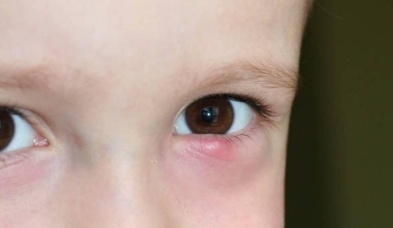 халязион верхнего века у ребенка лечение