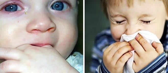 если ребенок чихает и текут сопли