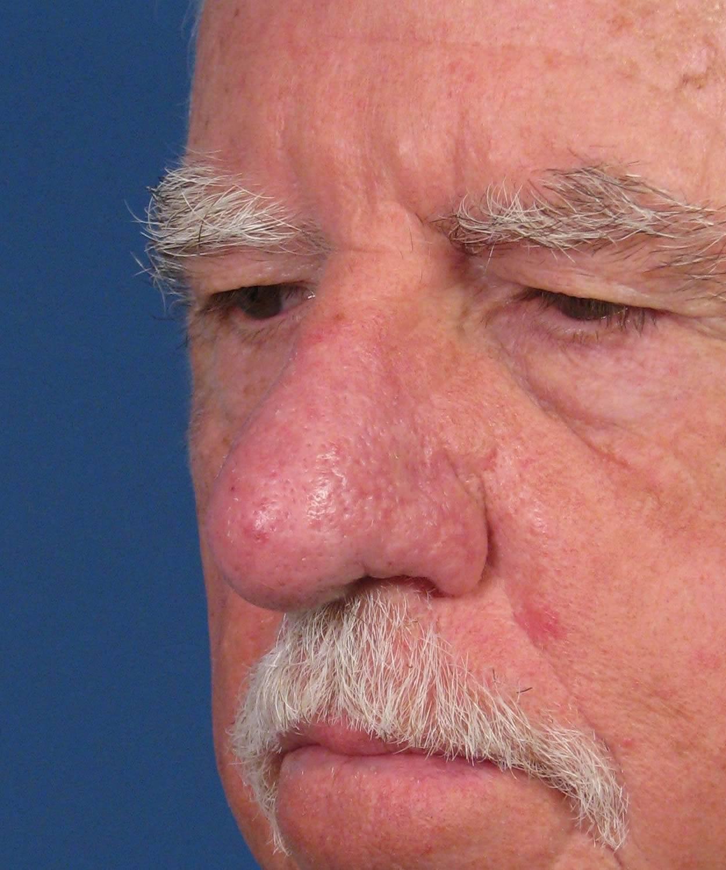 Покраснел кончик носа