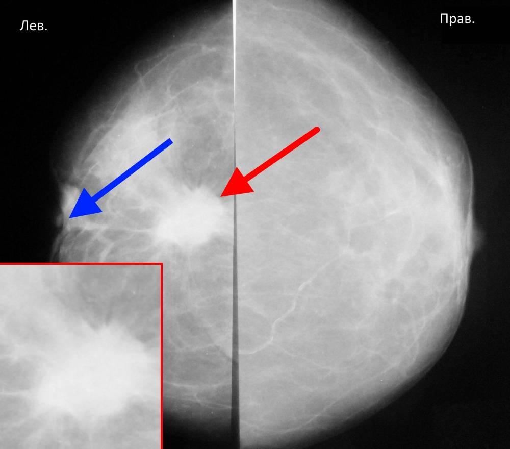 маммография молочных желез результаты расшифровка