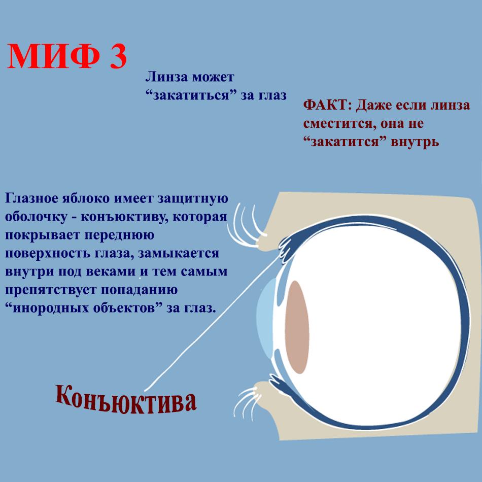 может ли контактная линза потеряться в глазу