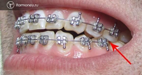 Если отклеился брекет на одном зубе что делать