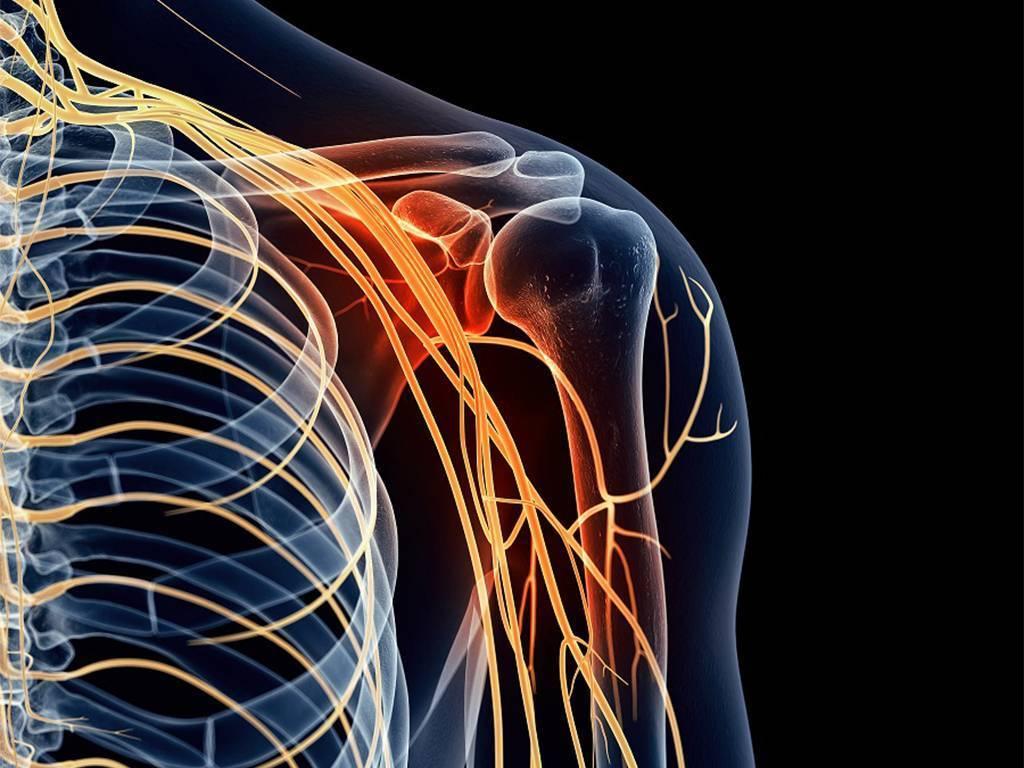 невралгии плечевого нерва