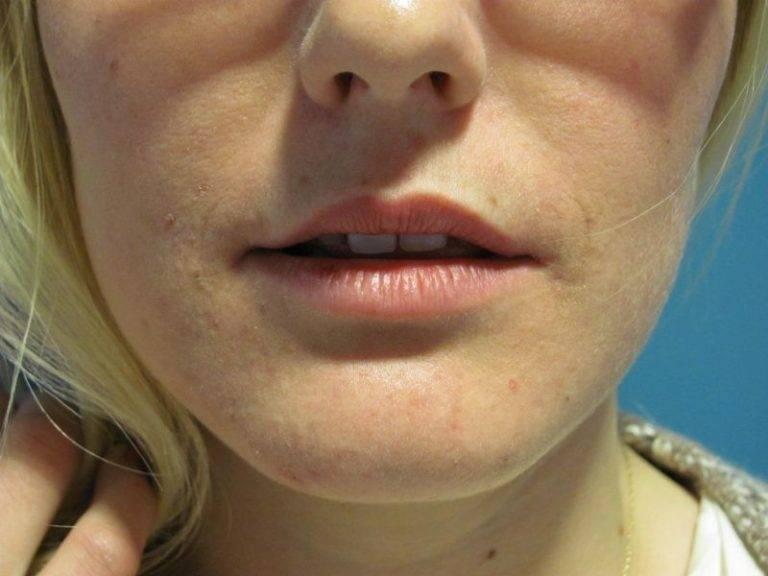 Как убрать опухоль с губы при герпесе