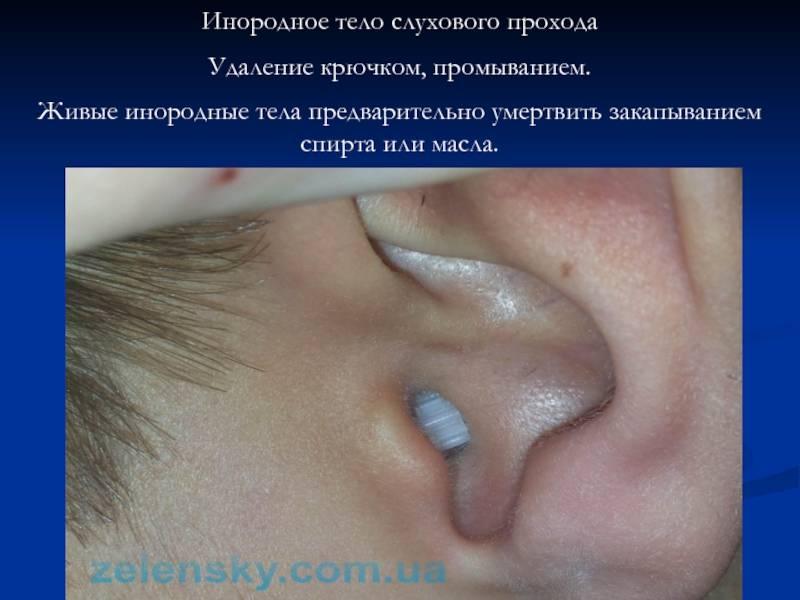 Инородное тело уха: причины заболевания, основные симптомы, лечение и профилактика