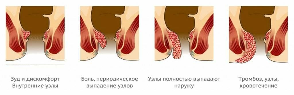 Причины, симптомы и чем лечить геморрой при беременности?