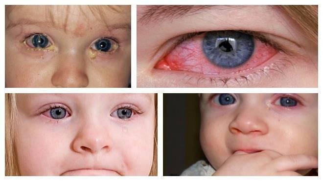 чем протирать глаза при коньюктивите у детей