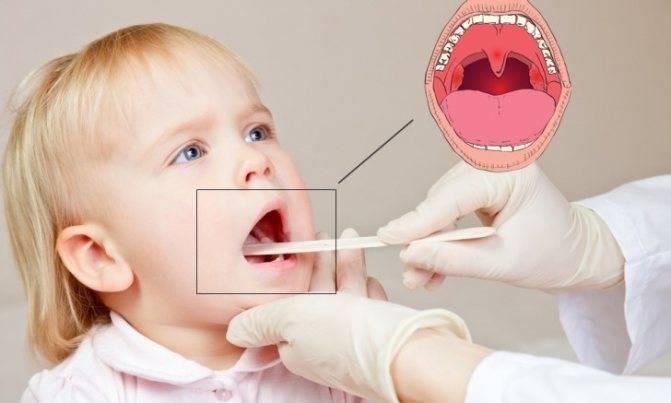 можно ли вылечить ангину у ребенка без антибиотиков