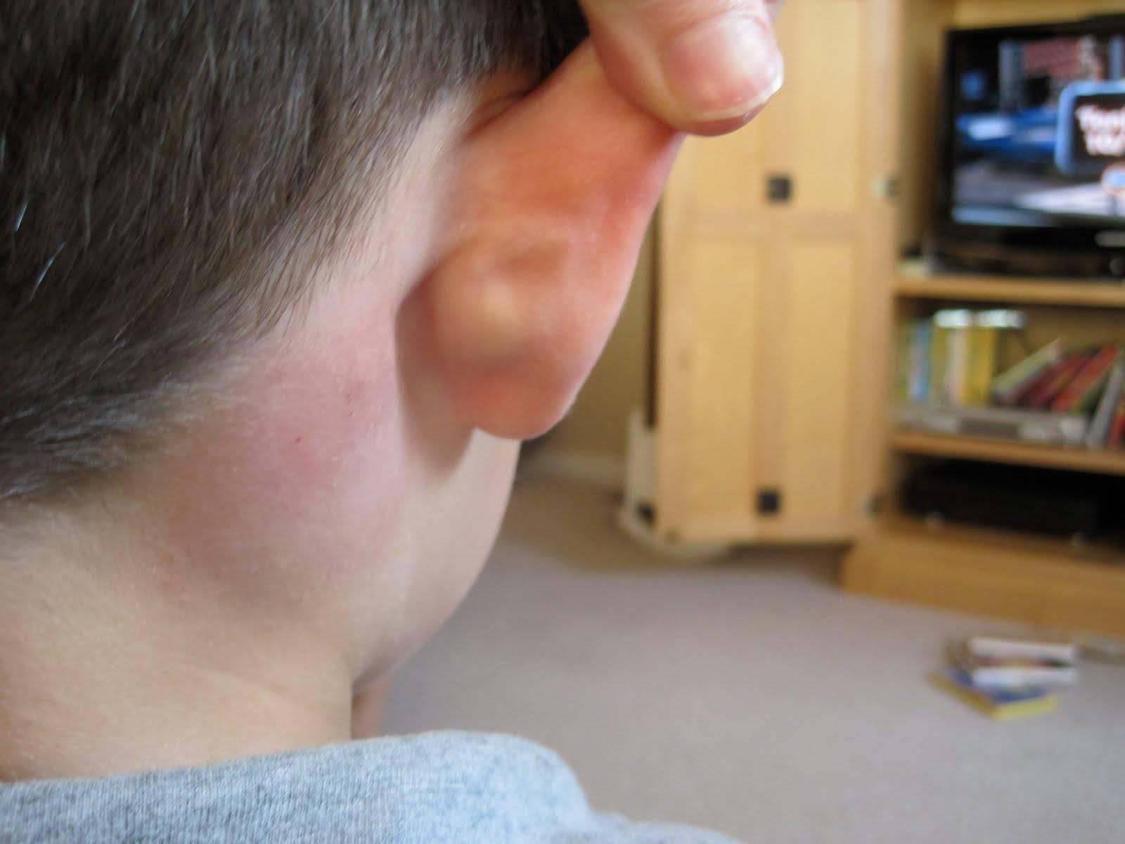 что делать если воспалился лимфоузел за ухом