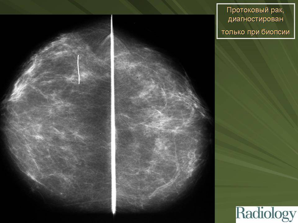 Инфильтративный рак молочной железы
