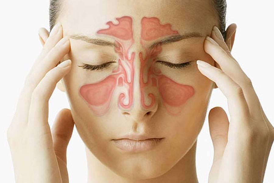 Лечение острого синусита у ребенка. советы родителям.