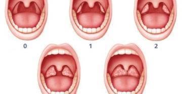 Ангина - комаровский (28 фото): симптомы и лечение герпесной ангины