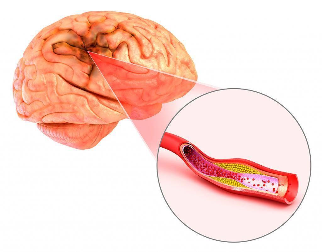Лечение атеросклероза сосудов головного мозга: симптомы и признаки