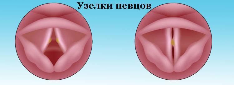 Лечение голосовых связок, как восстановить голосовые связки