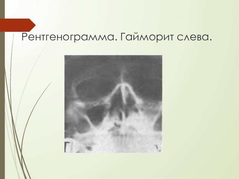 Перфорация гайморовой пазухи при удалении зуба стоматология