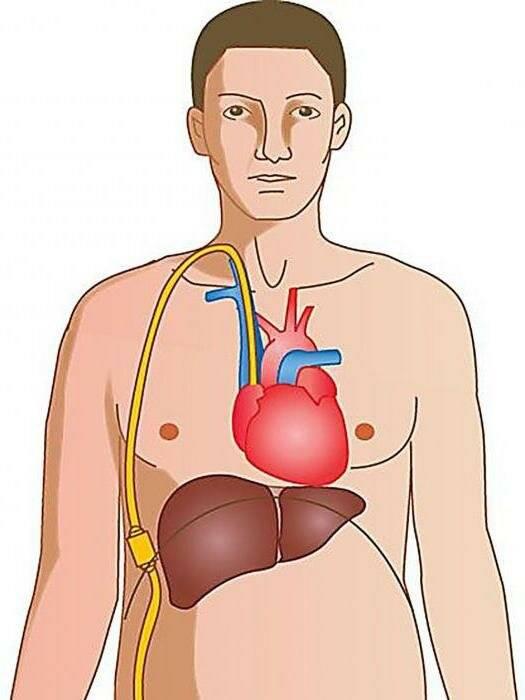 Асцит брюшной полости при циррозе печени – что это такое