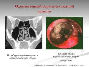 Одонтогенный гайморит — опасное последствие кариеса зубов