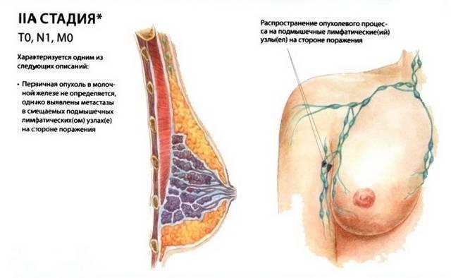 Рак груди 4 стадии