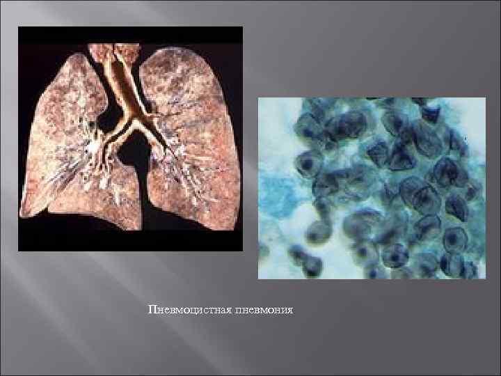 пневмоцистоз легких