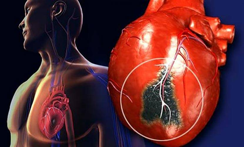 Атеросклероз аорты - что это такое? симптомы, причины, лечение и профилактика