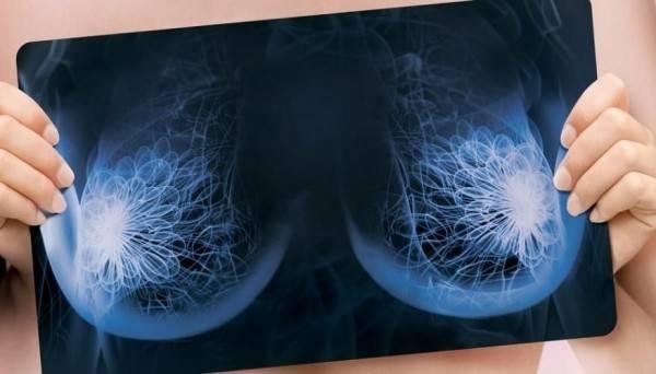 Маммография молочных желез: на какой день цикла и как часто делать диагностику