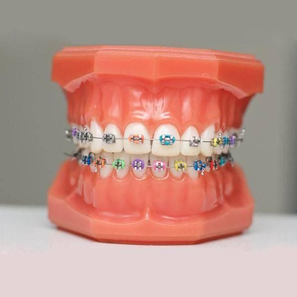 Сколько нужно носить брекеты чтобы выровнять зубы, как одевают брекеты