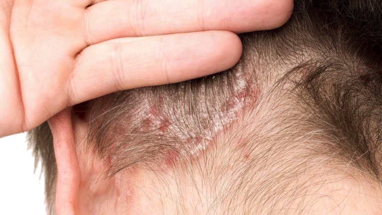 Себорейный дерматит волосистой части кожи головы, лица, тела. лечение и причины возникновения, симптомы.