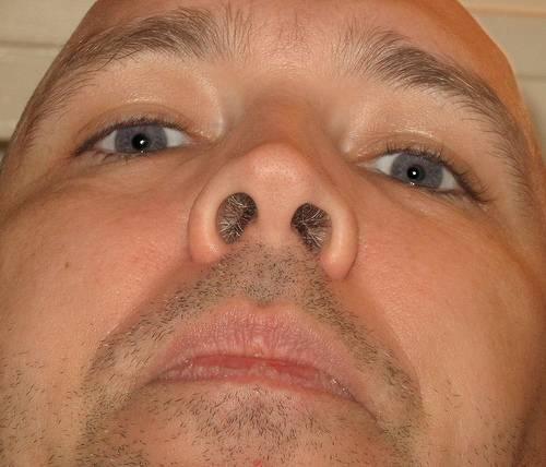 Болячки в носу: причины. чем лечить и почему долго не проходят?