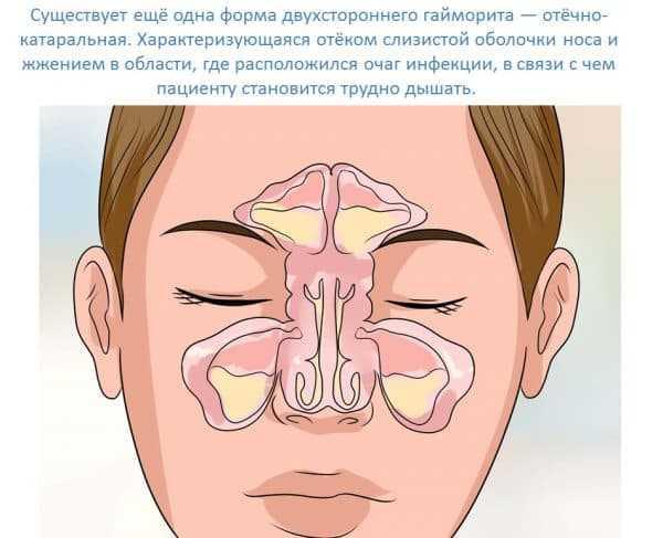 как остановить воду из носа