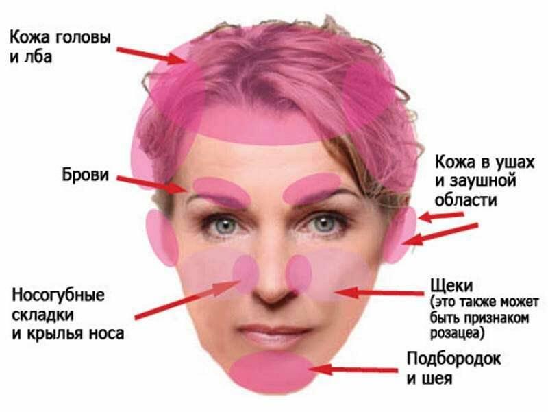 дерматит на лице лечение в домашних условиях