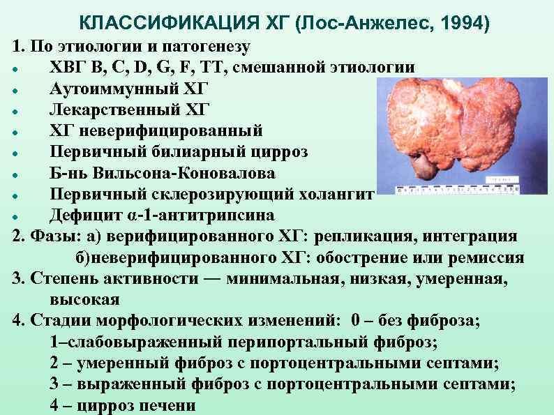 заразен ли цирроз печени для окружающих