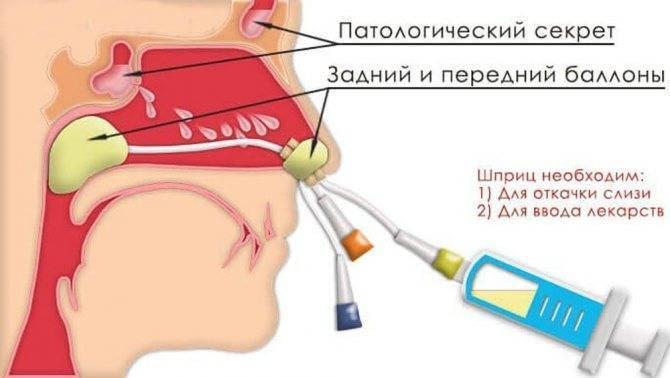 Боль в носовой пазухе без заложенности носа