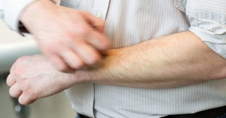 Печень зуд кожи лечение. причины зуда кожи при заболеваниях печени