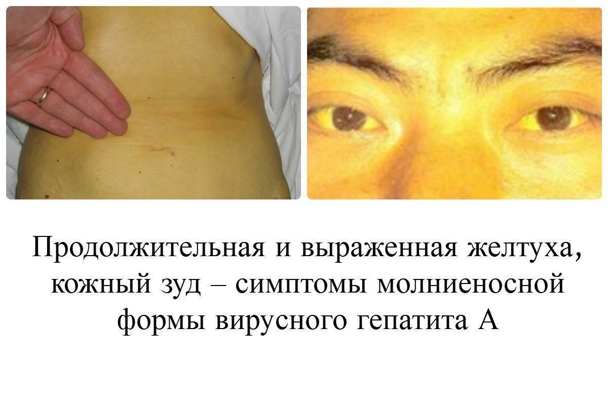 Какие симптомы при гепатите с