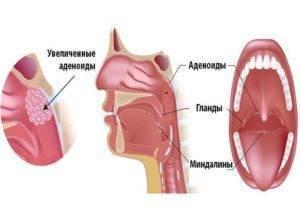 Аденоиды 1-2 степени у детей: причины, симптомы, лечение