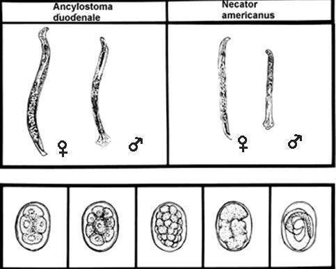 Анкилостома у человека: симптомы заражения