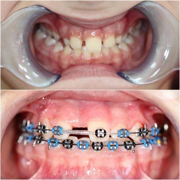 В каких случаях и как ставят брекеты на зубы? на сколько ставят брекеты?