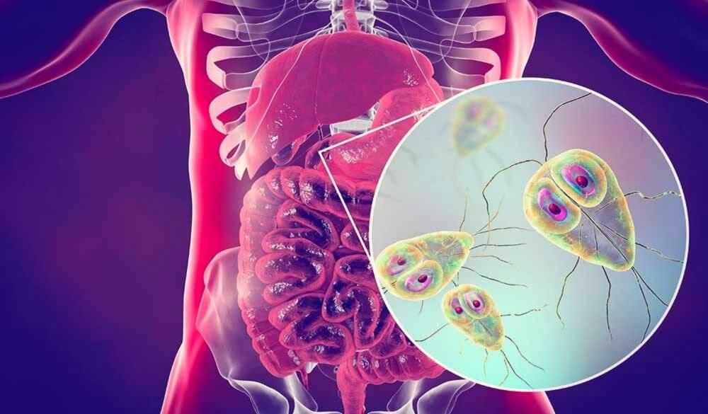 Хронический лямблиоз – особенности заболевания и лечение