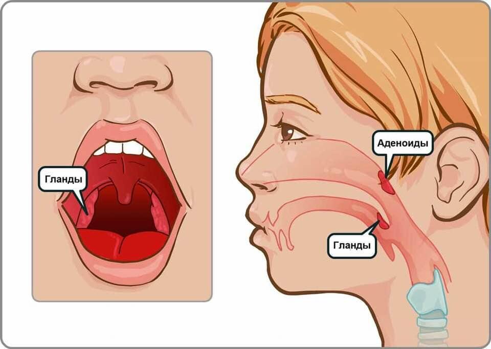 Заболевания, при которых у ребенка увеличены миндалины. лечение, возможные осложнения