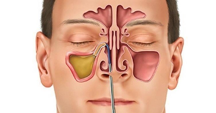 Лечение синусита народными способами