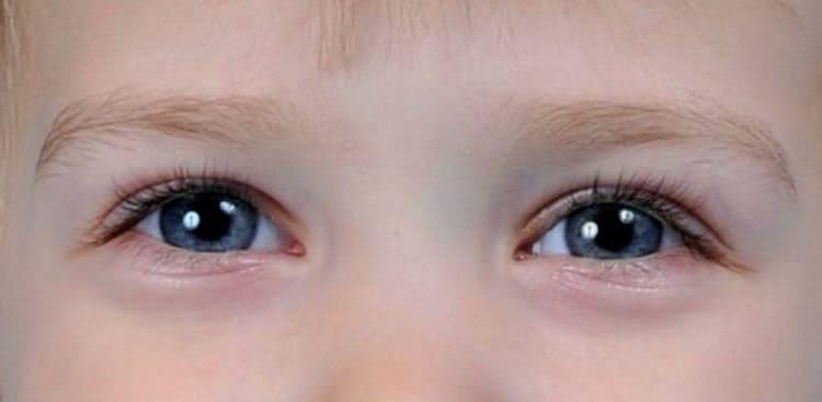 У ребенка синяки и круги под глазами — что говорит комаровский