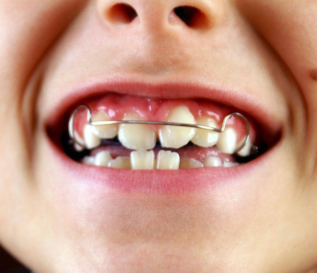 Скобы на зубы детям и взрослым - виды и особенности применения